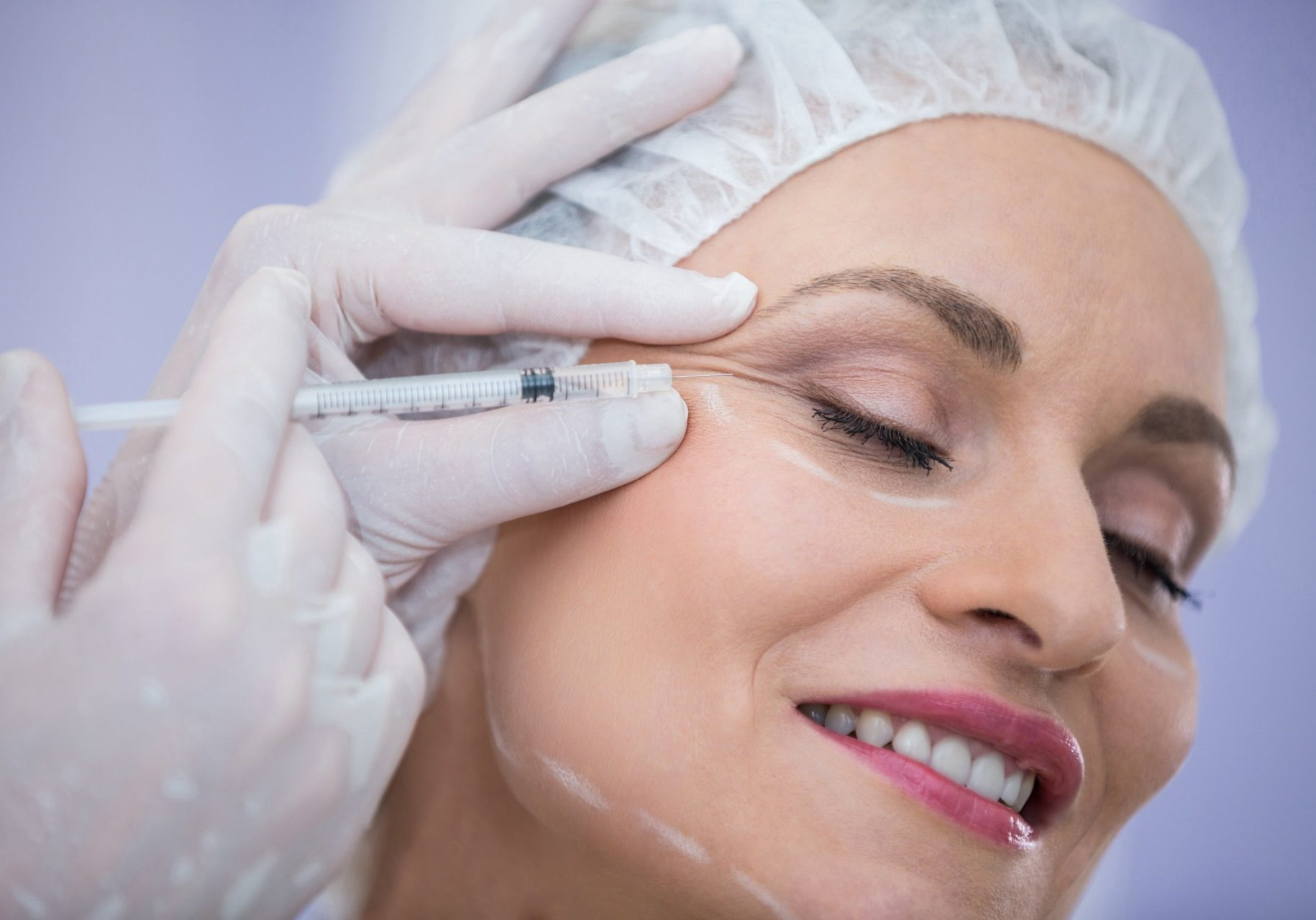 woman-with-marked-face-receiving-botox-injection-min